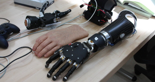 Prosthetic hand with artificial skin